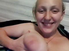 Nipple bite