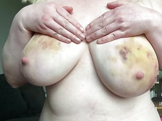 Beating my bruised breasts<div class='yasr-stars-title yasr-rater-stars-vv'                           id='yasr-visitor-votes-readonly-rater-73e360491eeda'                           data-rating='0'                           data-rater-starsize='16'                           data-rater-postid='1017'                            data-rater-readonly='true'                           data-readonly-attribute='true'                           data-cpt='posts'                       ></div><span class='yasr-stars-title-average'>0 (0)</span>